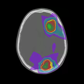 UF Radiation Oncology First to Employ AI-Assisted MRCAT Brain Cancer Treatment Planning Technology in the U.S.